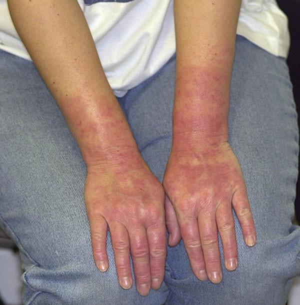 Latex allergy elastic